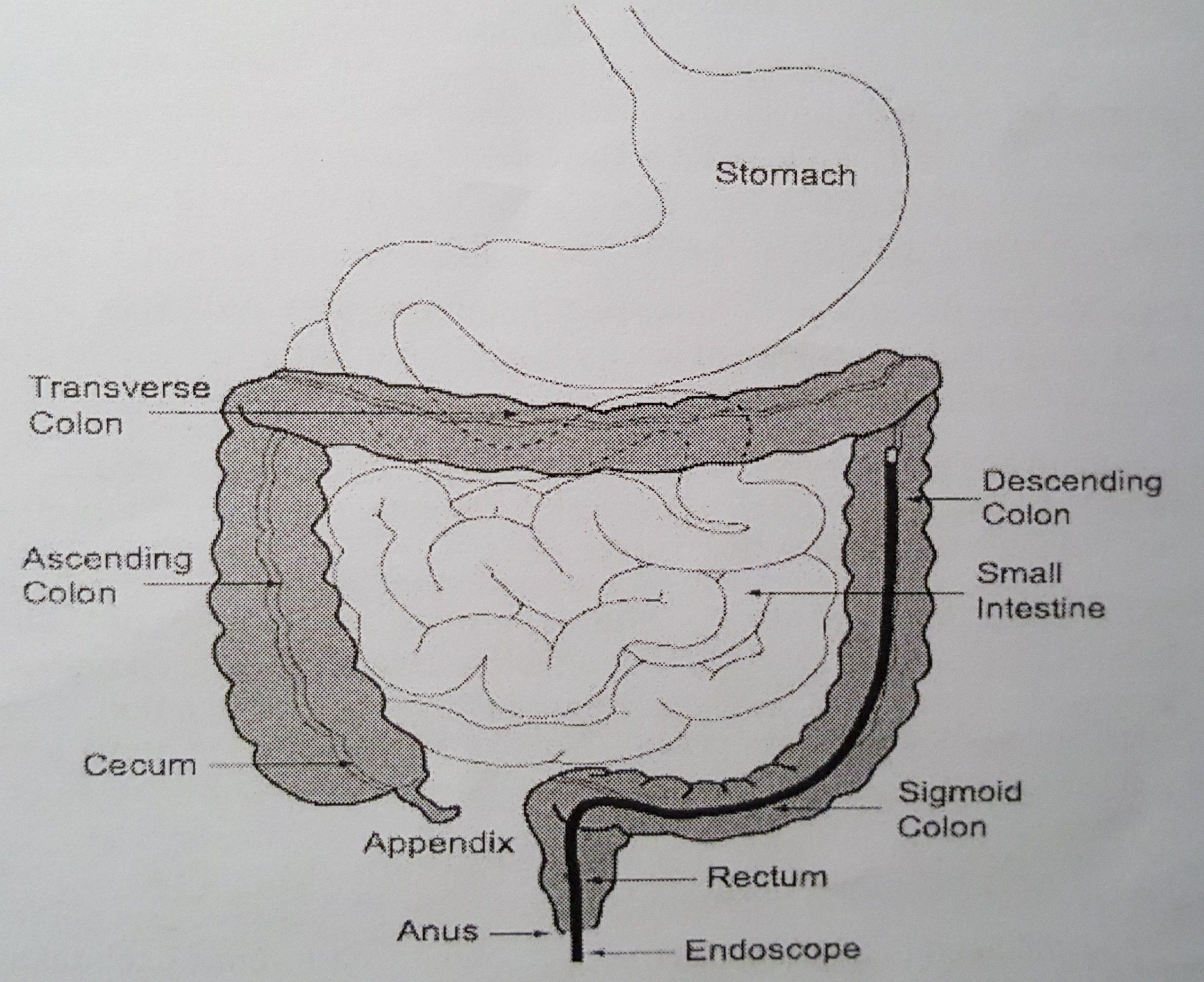 Colonoscopy Diagram