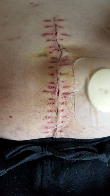 Reversal-surgery-wound-after-the-stitches-are-gone