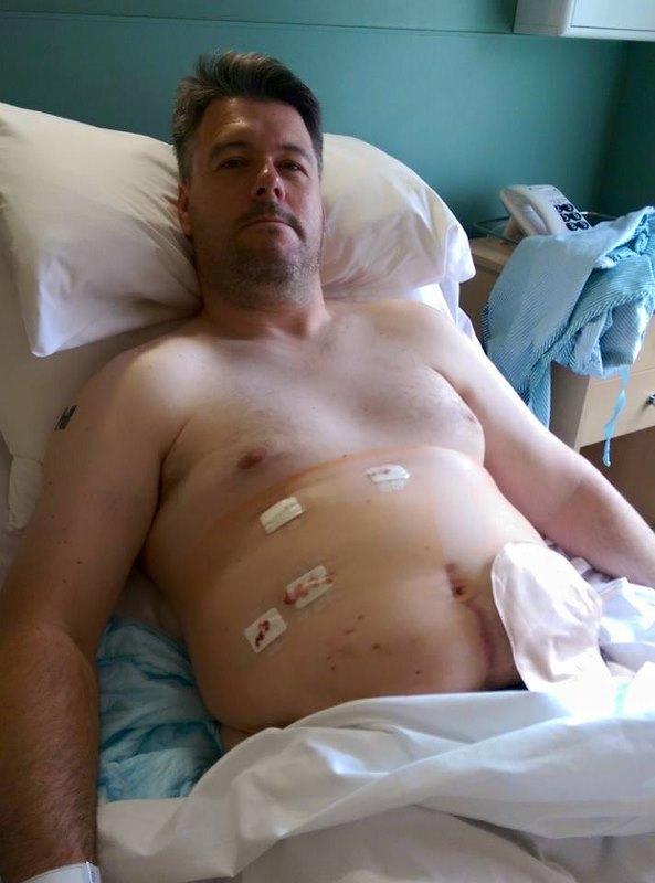 Post-Laparascopic-Liver-Investigation